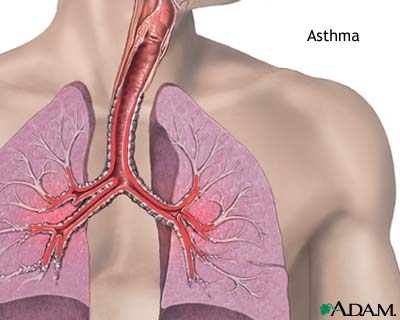 Determine Your Type of Asthma