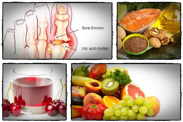 what are the best remedies for gout what causes uric acid in blood higher level of uric acid in blood