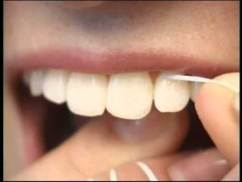 What you need to know about the dental floss for What is flossing